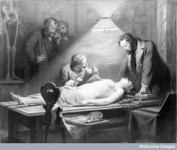 Chalk drawing of woman being dissected by J. H. Hasselhorst