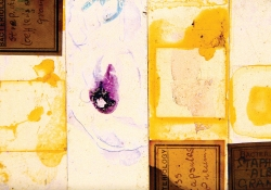 A collage combining old bacterial slides with other mixed media, organized in rectangles